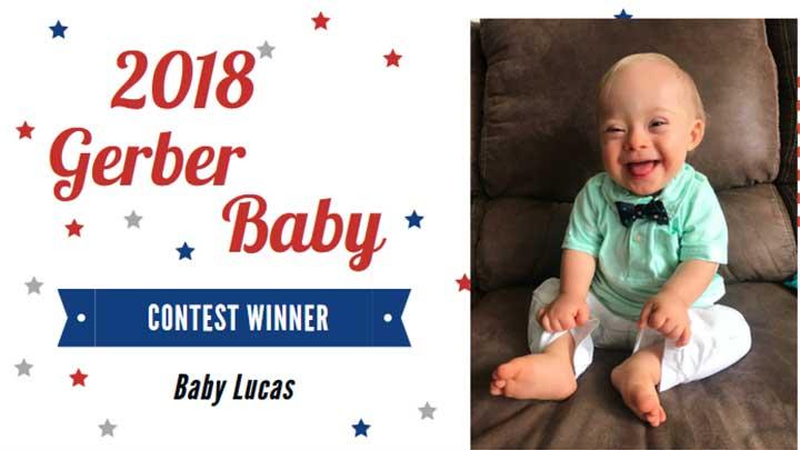 Gerber baby 2018: Lucas Warren